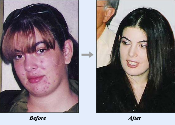 Acne No More Result Before And After Acne No More