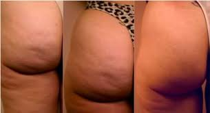 Kick butt Cellulite Redux Naked Beauty The Symulast Method