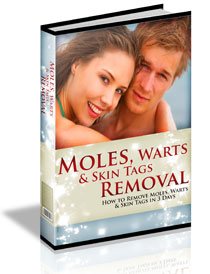 Moles Warts Skin Tags Removal