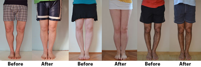 Bow Legs No More results before after